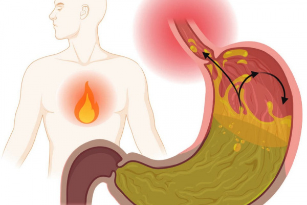 (Pharmacists) Management of Heartburn and Acid Reflux | from 17 Jul, 2021 to 26 Aug, 2021