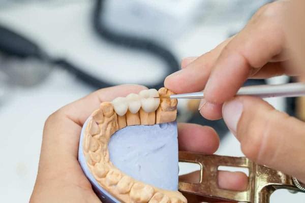 Dental Surgery Technicians