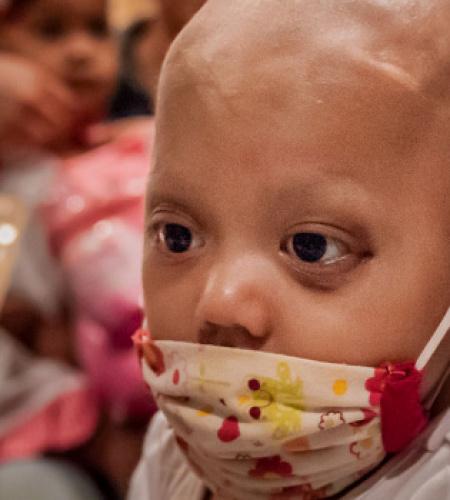 Paediatric Chemotherapy in Sub-Saharan Africa Image